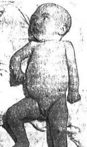 Деринат при насморке у ребенка форум